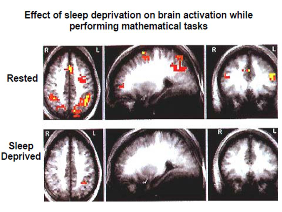 sleep deprivation and effects on academic The cumulative cost of additional wakefulness: dose-response effects on neurobehavioral functions and sleep physiology from chronic sleep restriction and total sleep deprivation.