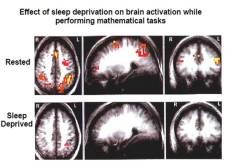 Professor Foster --effect of sleep deprivation on brain tasks